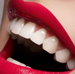 Get the most amazing confident and perfect smile with this secret product