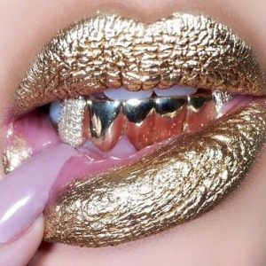 Most expensive dental gold teeth